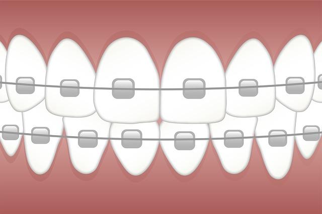 歯科矯正の金属ブラケット