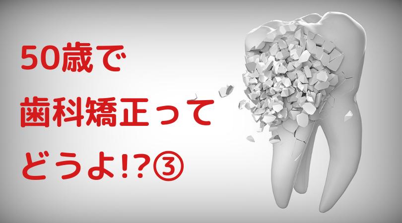 50歳で歯科矯正ってどうよ!? ③